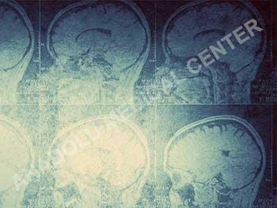 астроцитом в главата