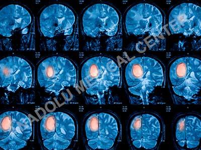 диагноза тумор в мозъка